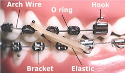Orthodontic Terms - Orthodontist in Rome and Cedartown, GA